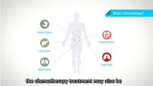 Training – NCIS Chemo HSCT Patient Education